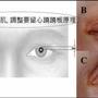DR盧龍一眼睛專家